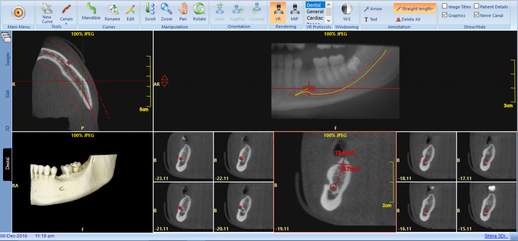 CBCT Scan on PACS Viewer