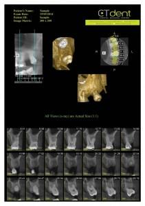 CTDent-DP700-samples Page 02-600x852