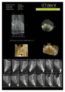 CTDent-DP700-samples Page 04-600x849